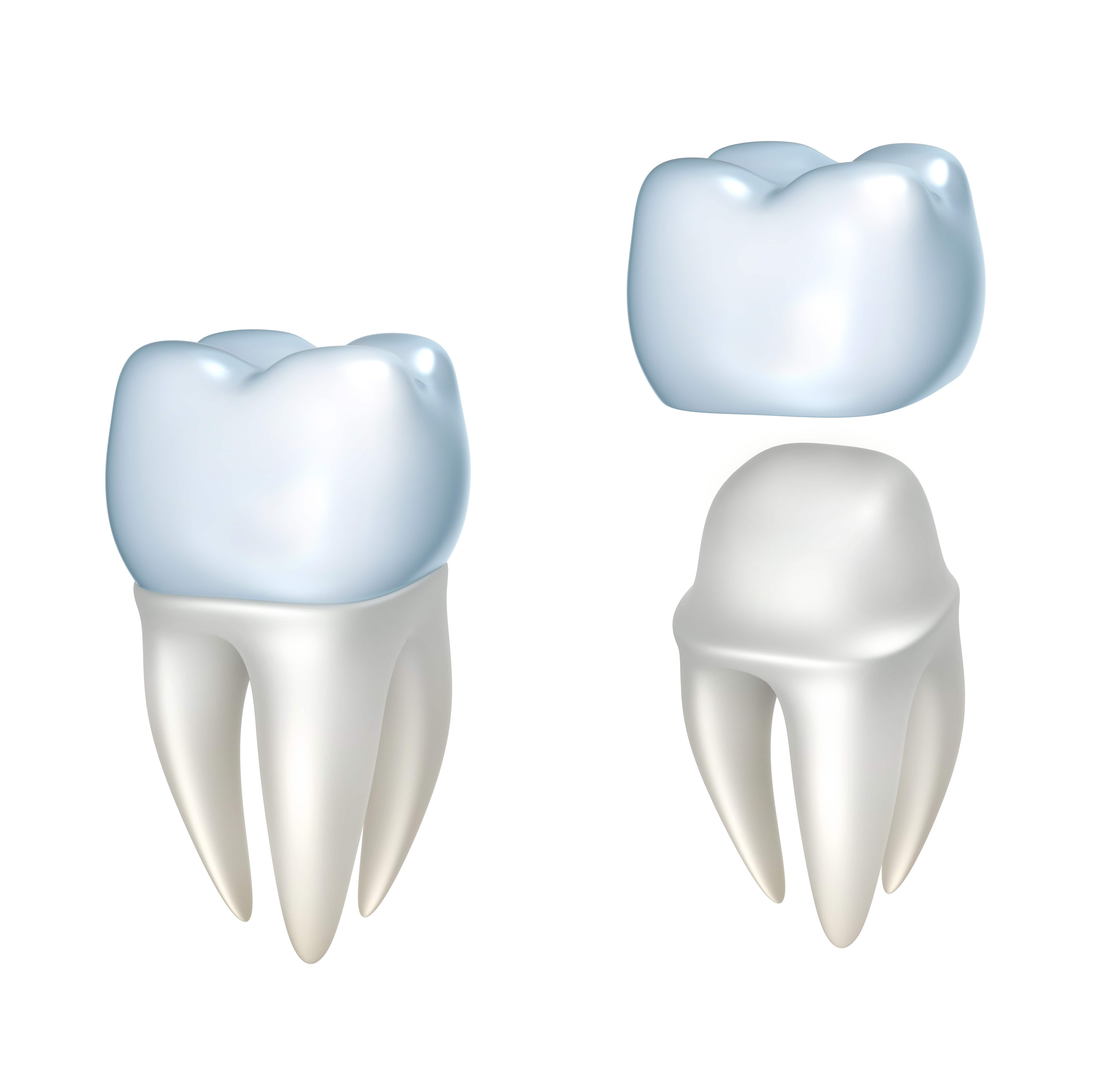 dental crowns dentist cambridge